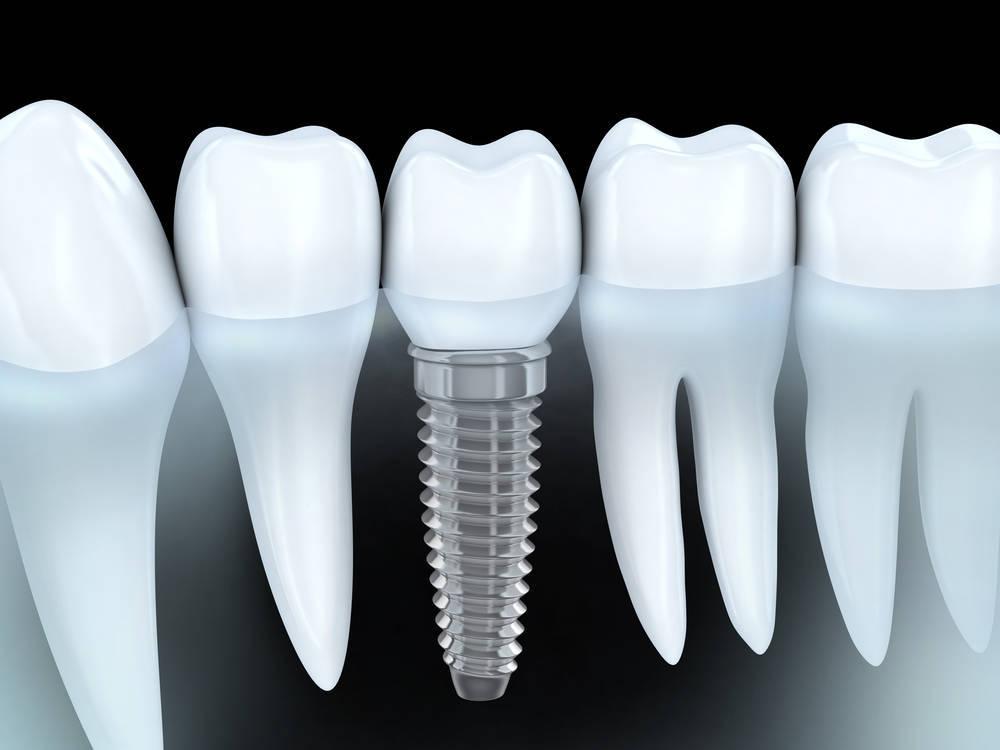 Las prótesis dentales, una solución