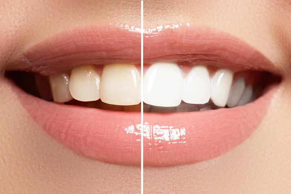 Cuidado con los blanqueamientos dentales caseros
