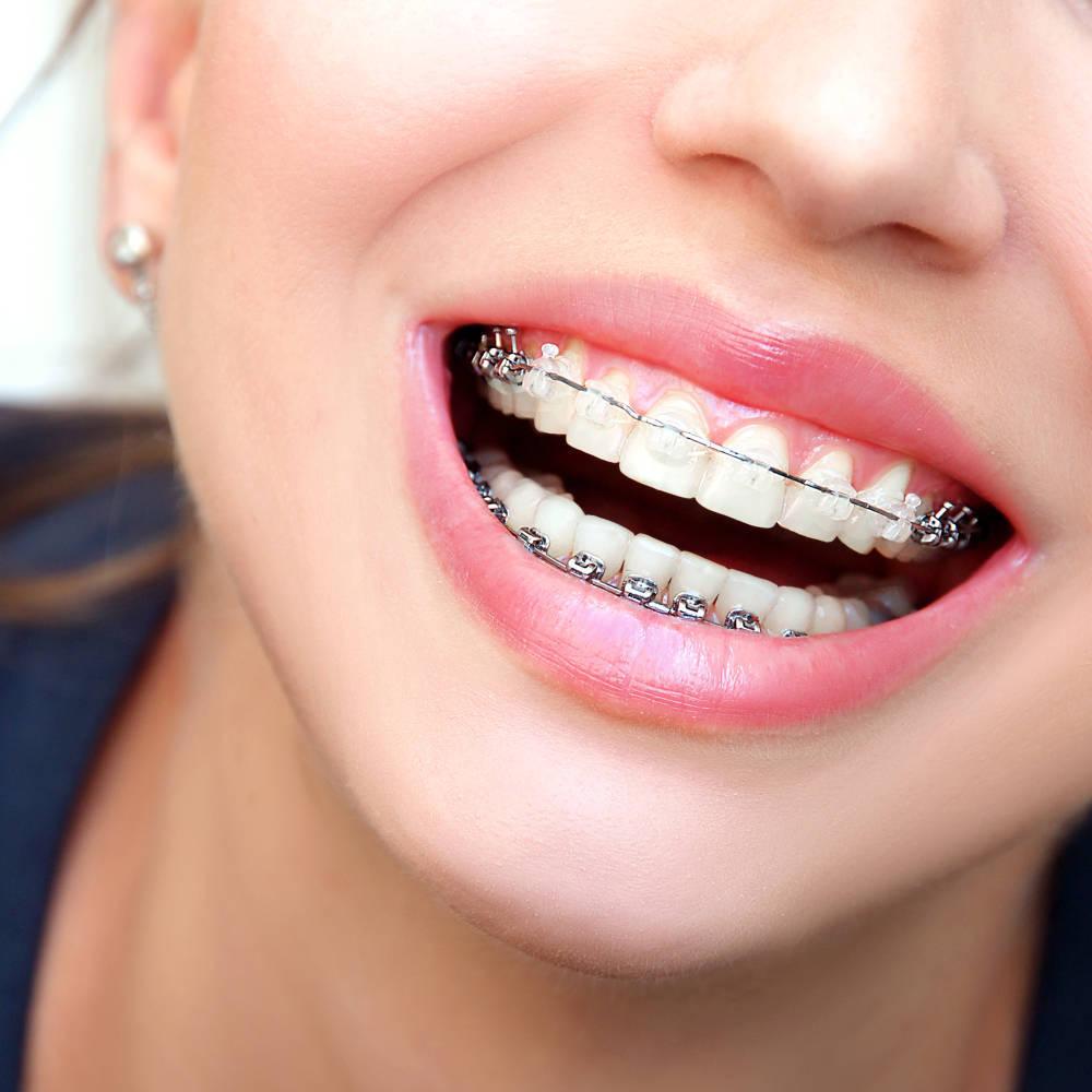 ¿A qué edad es más efectiva la ortodoncia infantil?