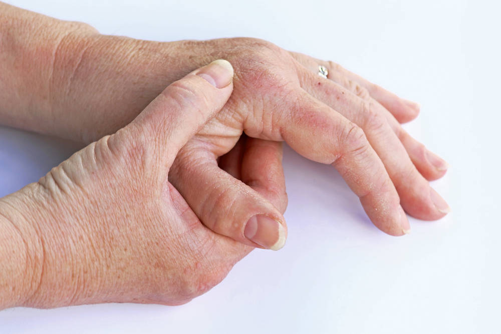 ¿Sabemos diferenciar entre artritis y artrosis?