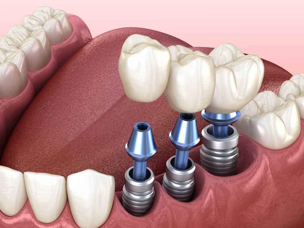 Edentulismo o falta de piezas dentales. Un problema muy común